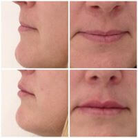 Lip Fillers at Precise Medical Aesthetics