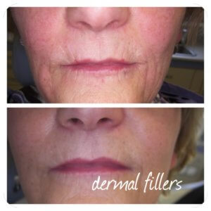 Lip Fillers in older women at Precise Medical Aesthetics
