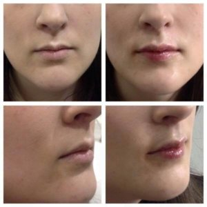 Small lips beautifully Precise Medical Aesthetics