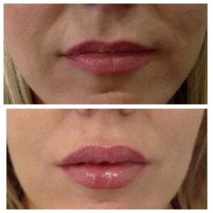 Fuller lips at Precise Medical Aesthetics