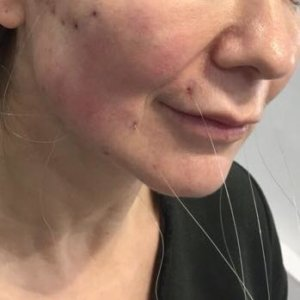 Threads in place to lift jowls during Silhouette Soft Thread Lift